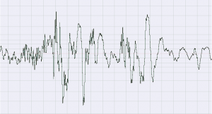 Figure 3.5 Waveform of noise